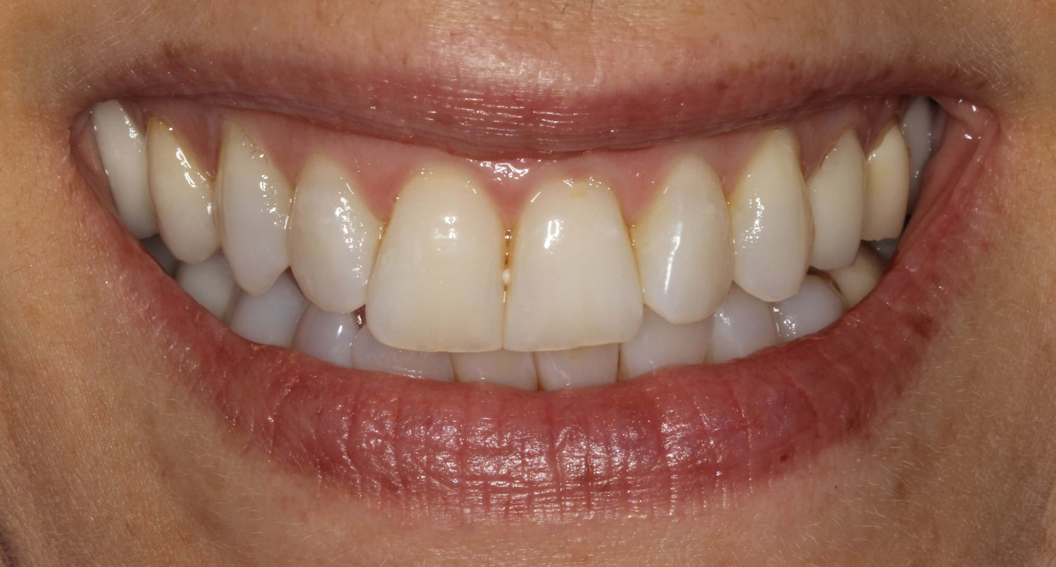 Porcelain Veneer Restorations Before