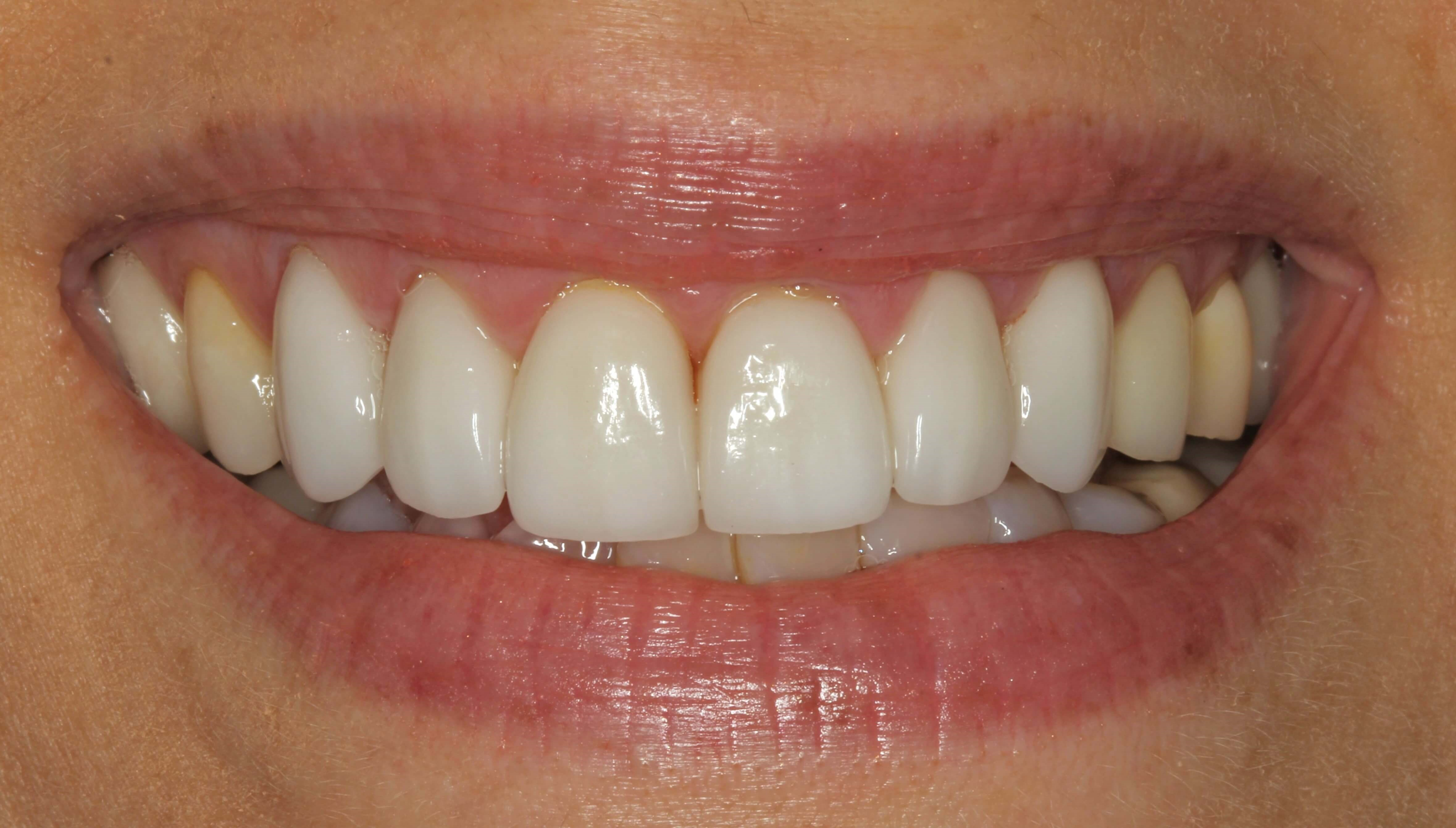 Porcelain Veneer Restorations After