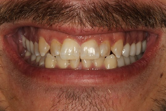 Porcelain Veneers Smile Design Before