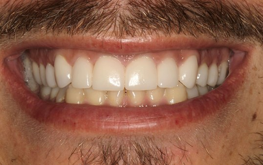 Porcelain Veneers Smile Design After