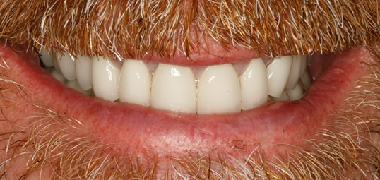 Porcelain Crowns at SmilesNY After