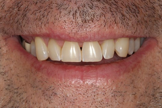 Healthy Smile Makeover Before