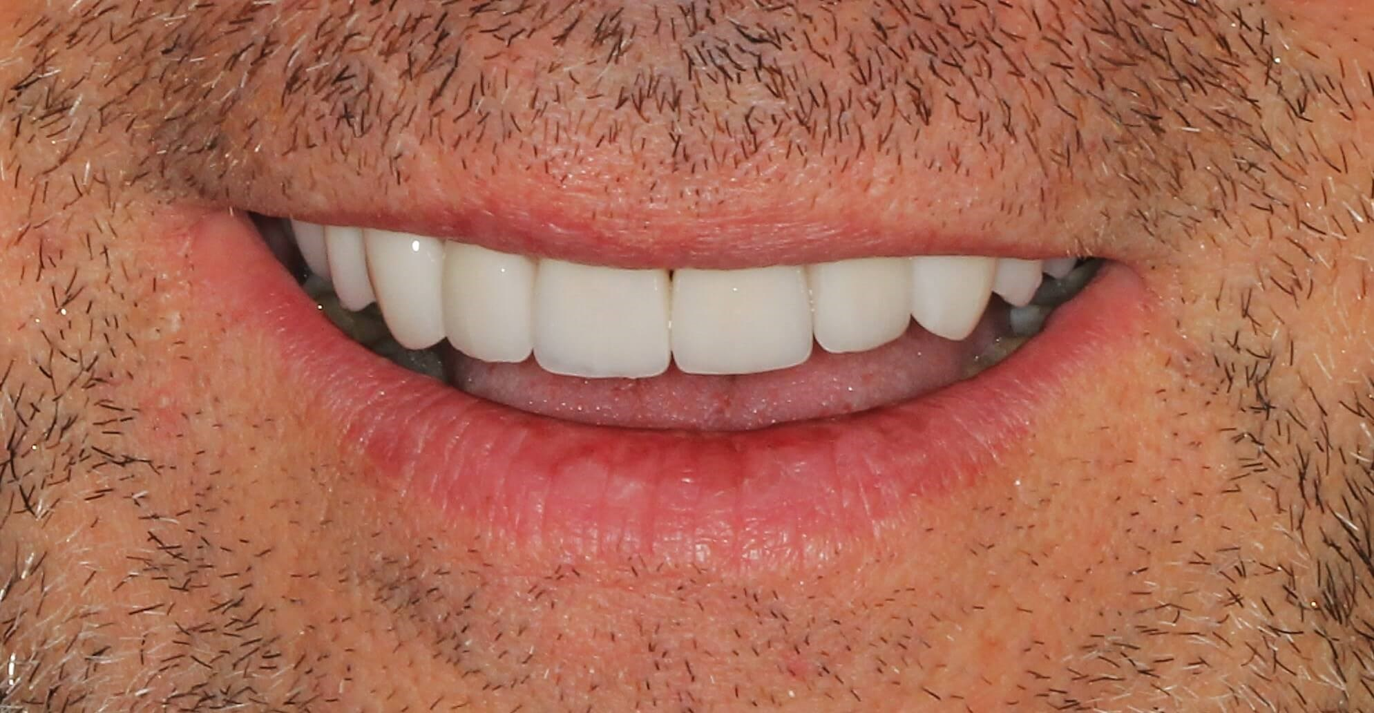 Healthy Smile Makeover After
