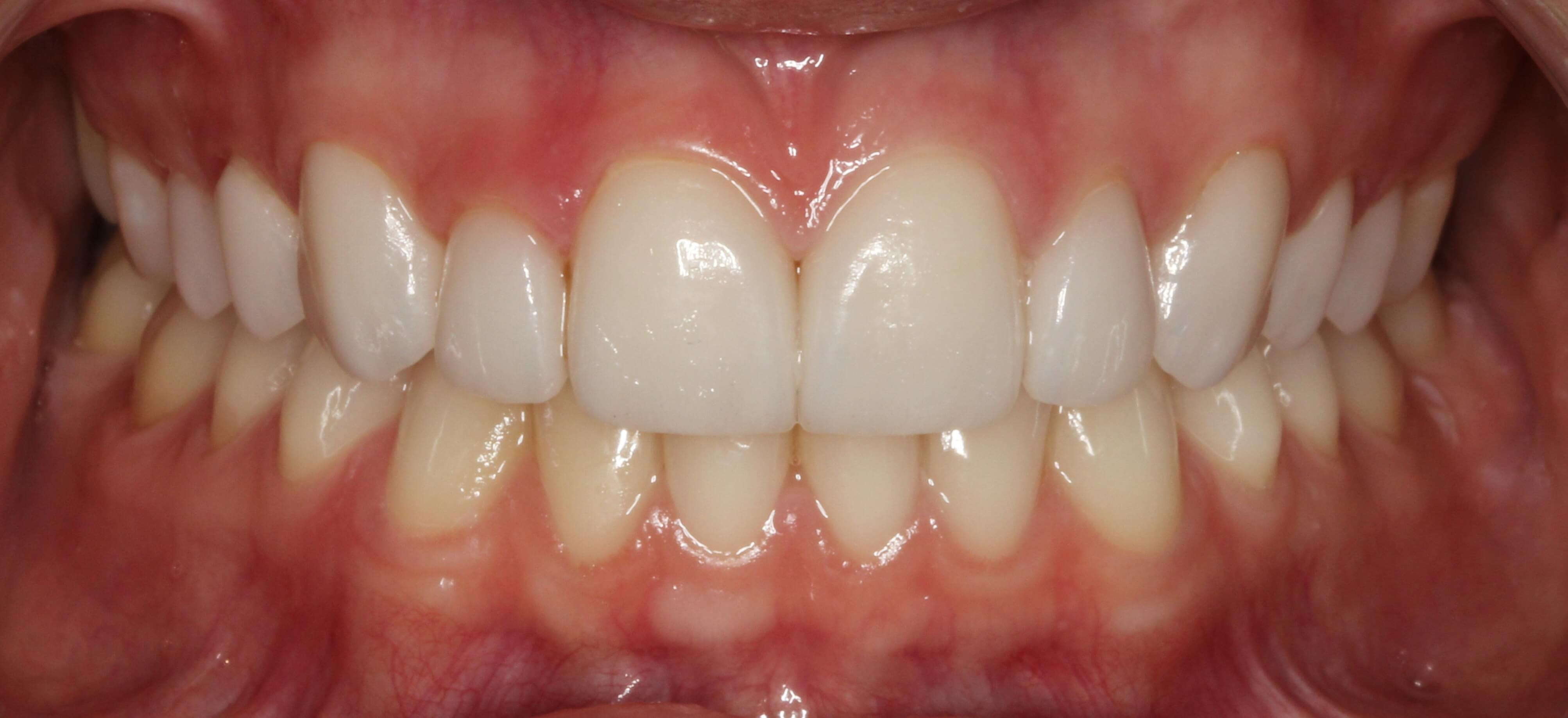 Veneer Smile Makeover After