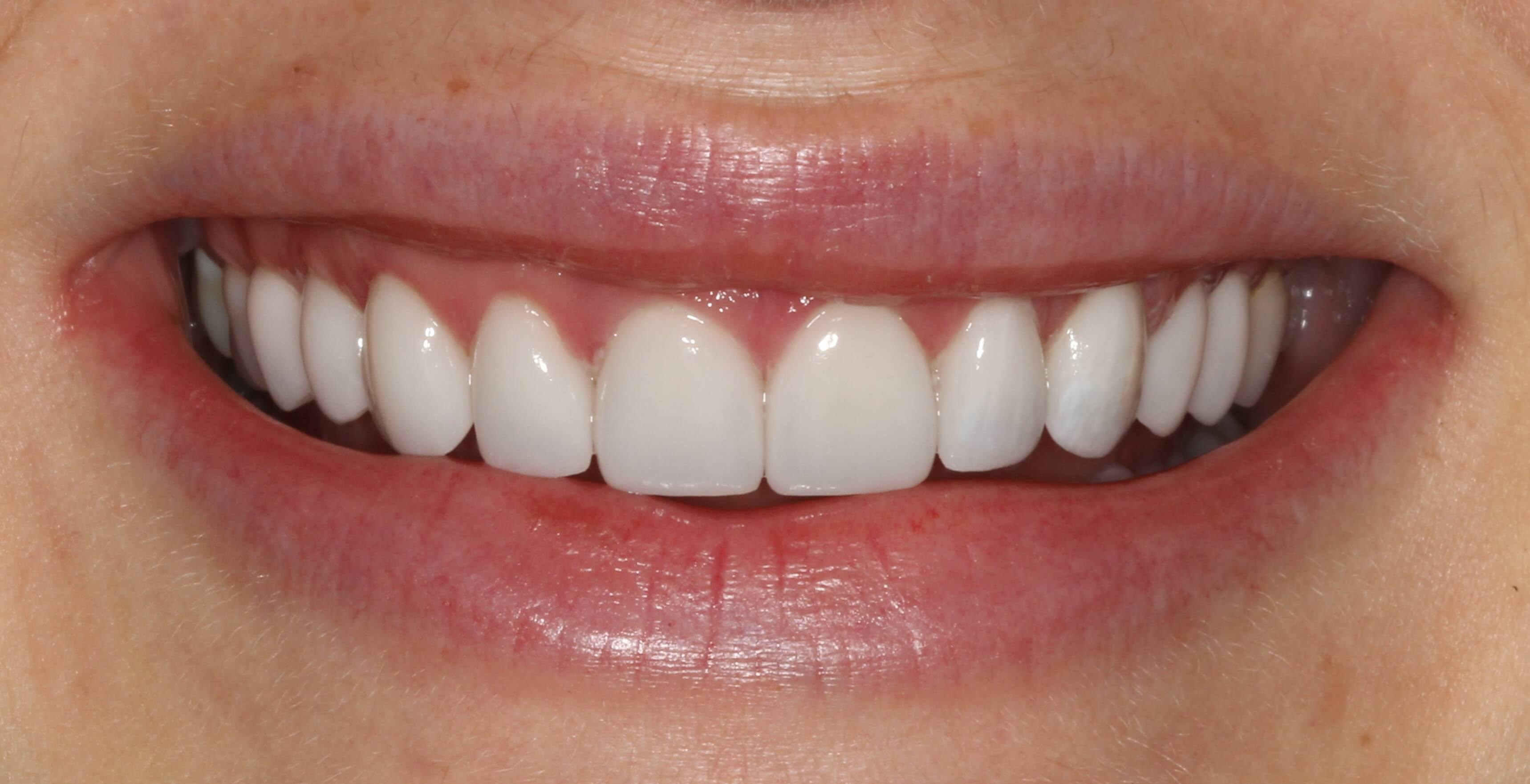 Porcelain Veneer Smile Design After