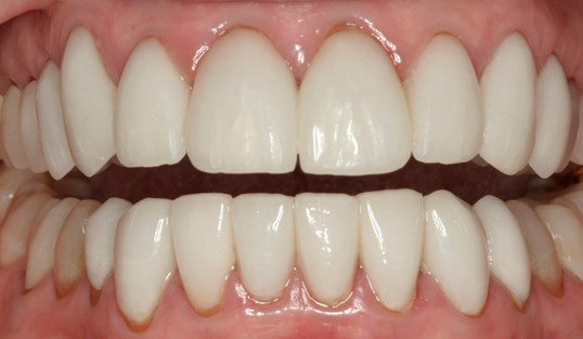 Beautiful Smile Reconstruction After