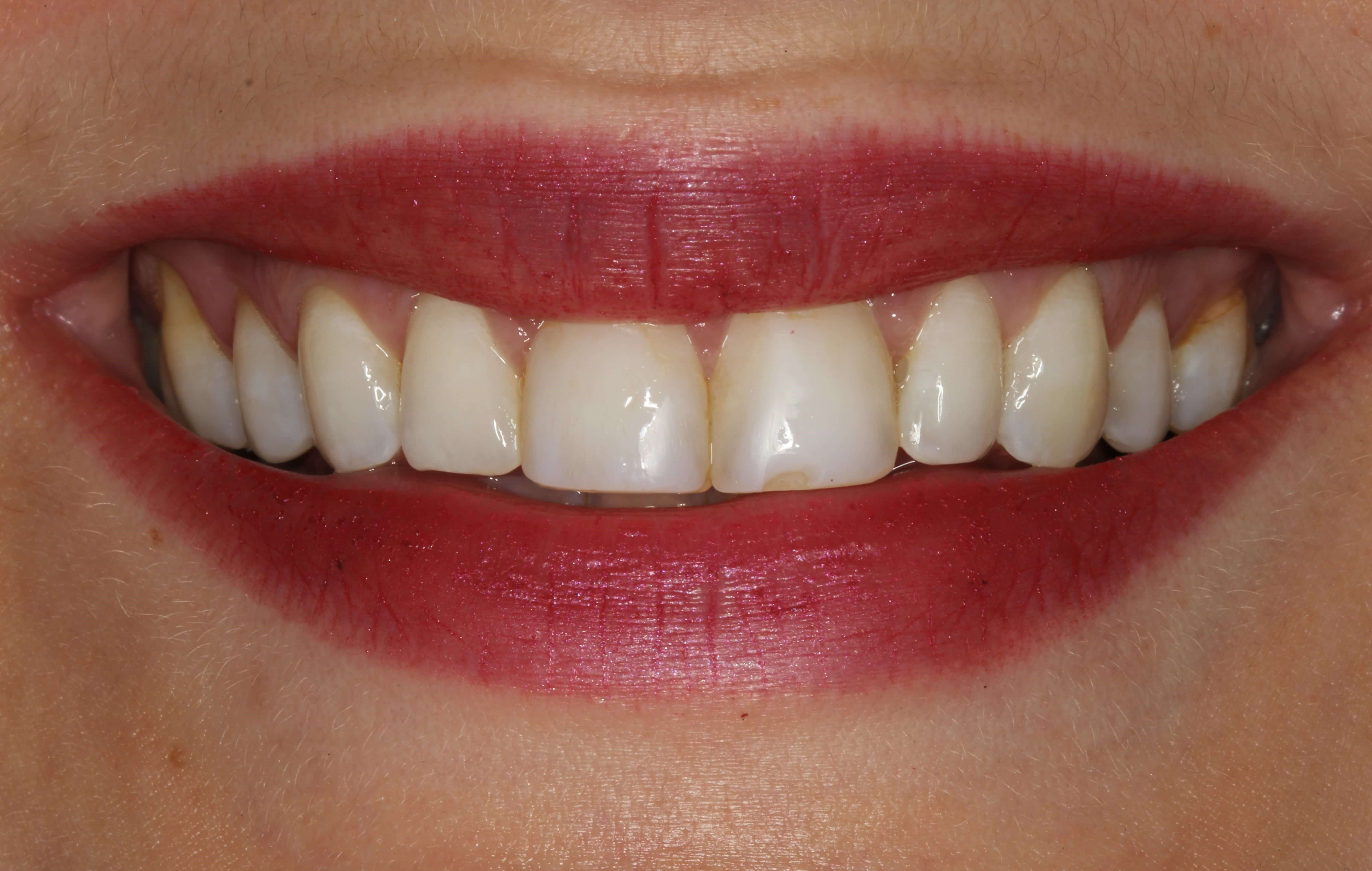 Veneers Replacing Bonding Before
