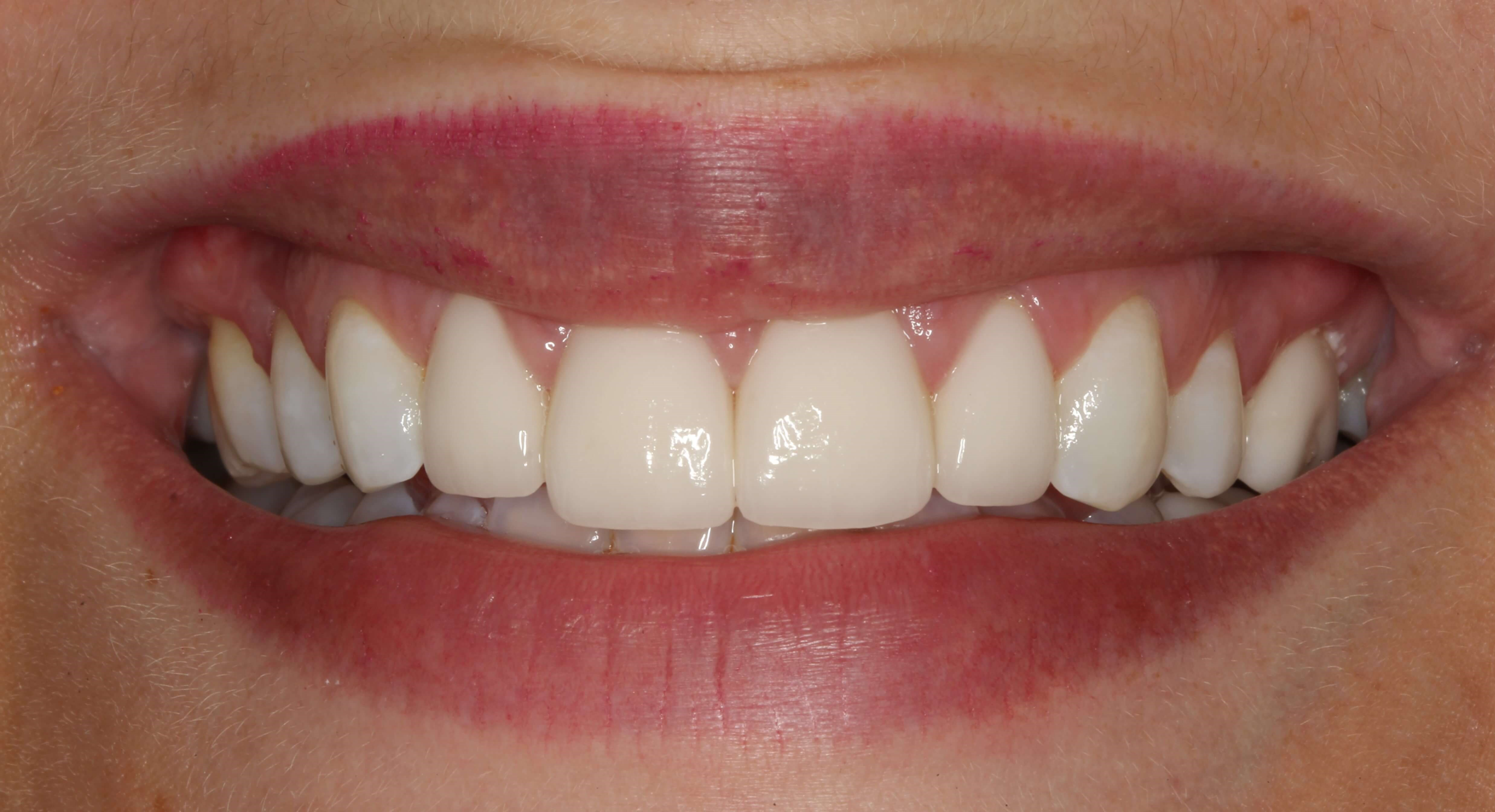 Veneers Replacing Bonding After