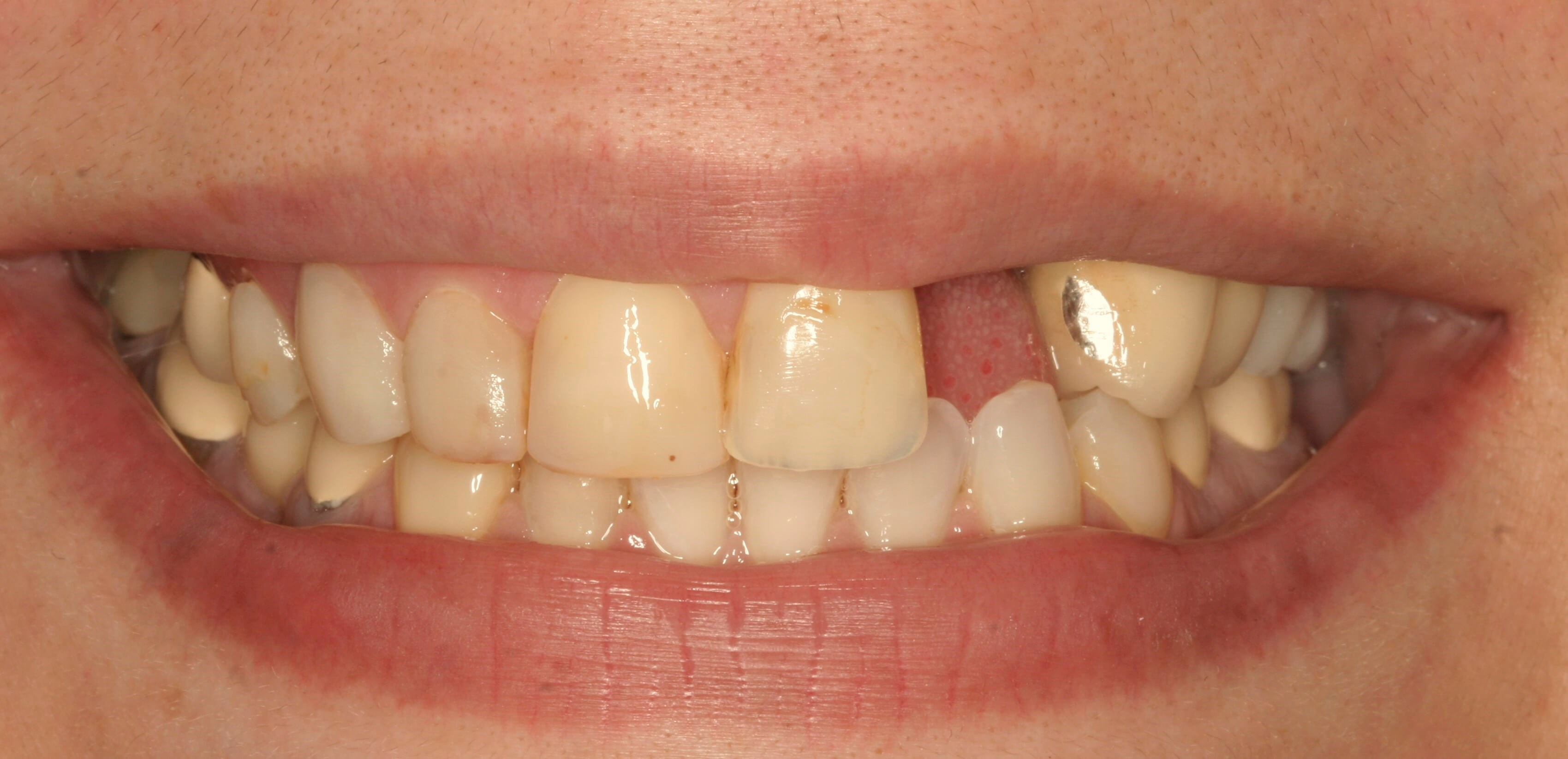 Smile Design for Missing Teeth Before