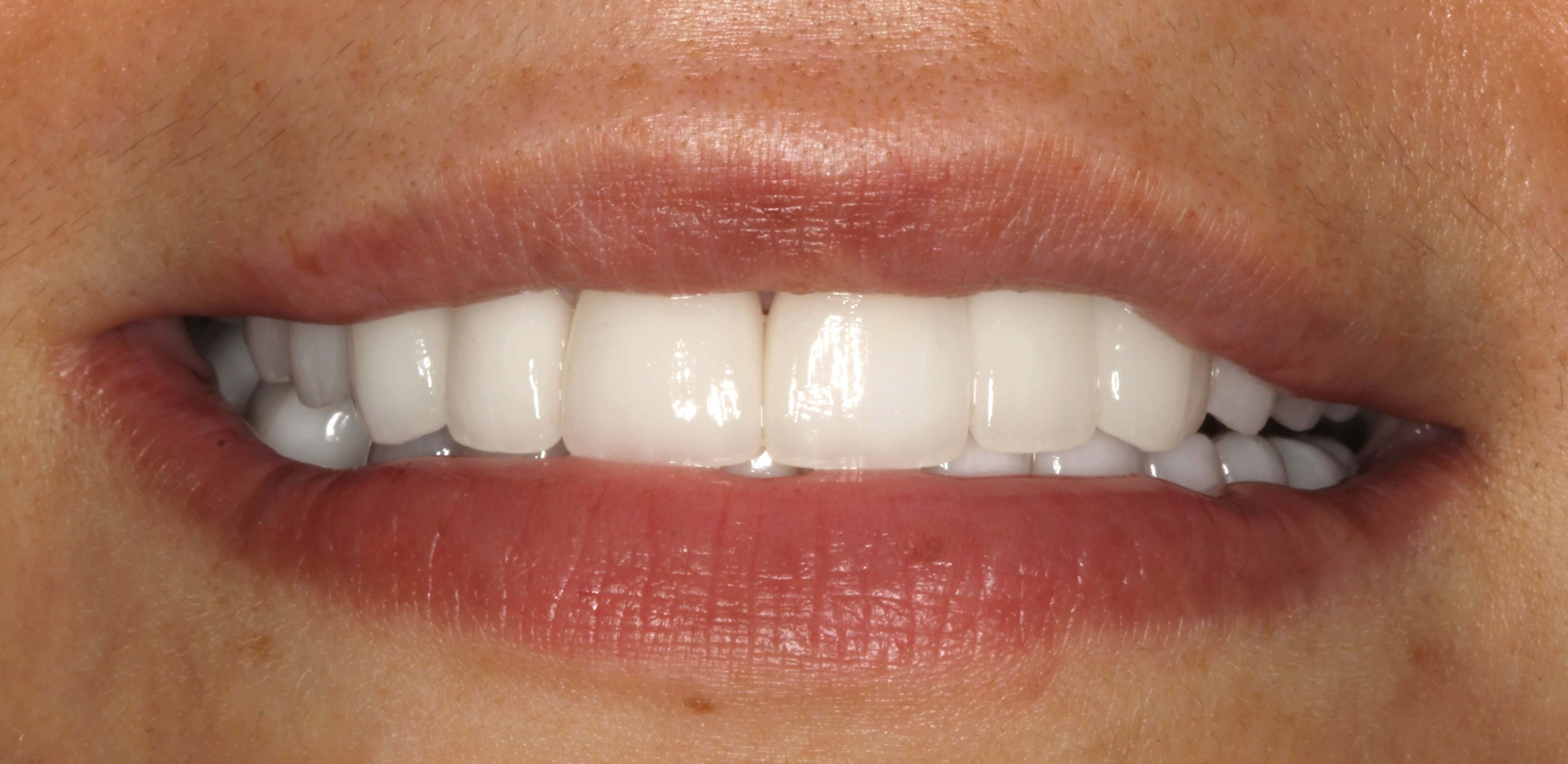 Smile Design for Missing Teeth After
