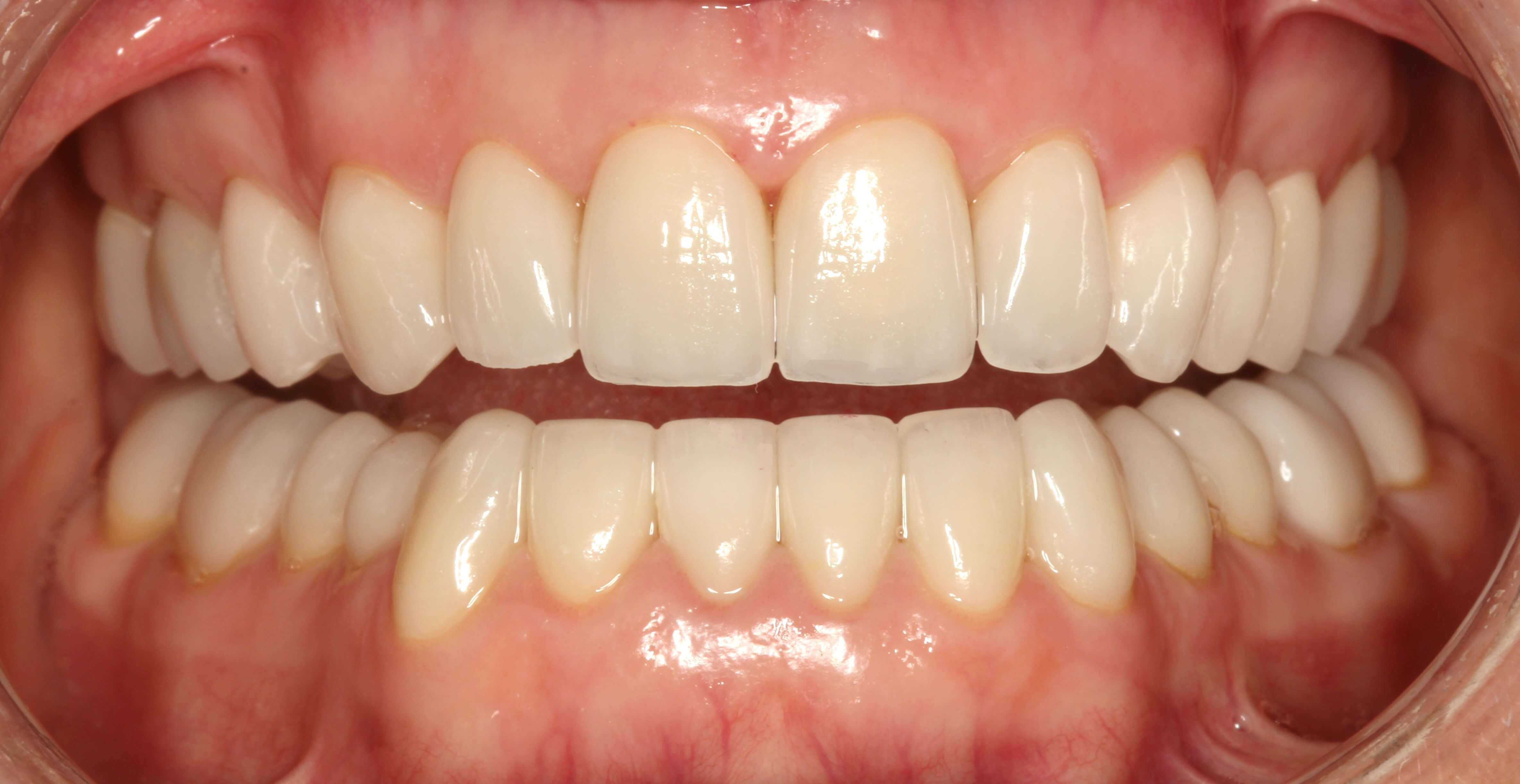 Smile Design at SmilesNY After
