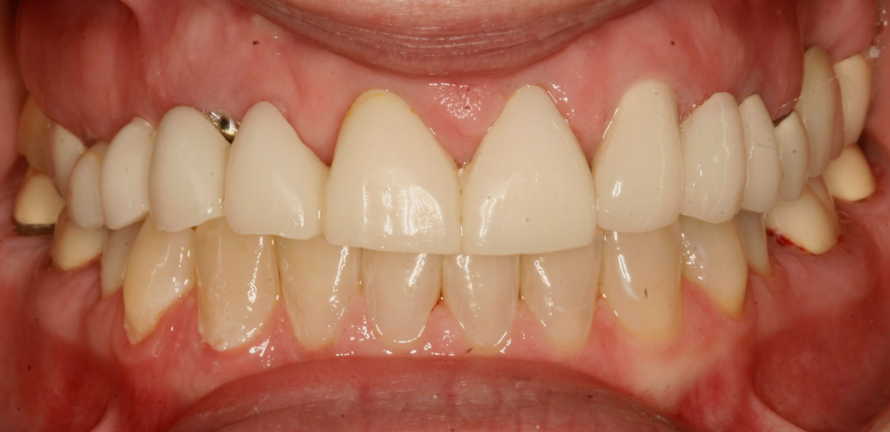 Porcelain Crowns and Implants Before
