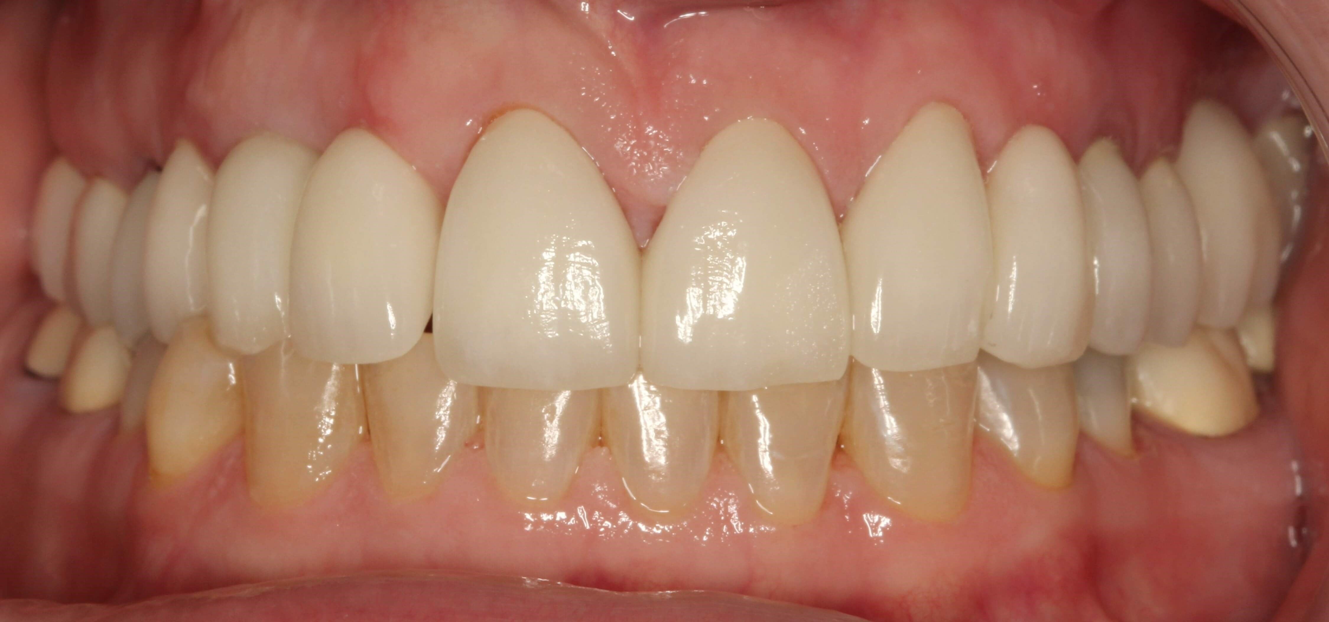 Porcelain Crowns and Implants After