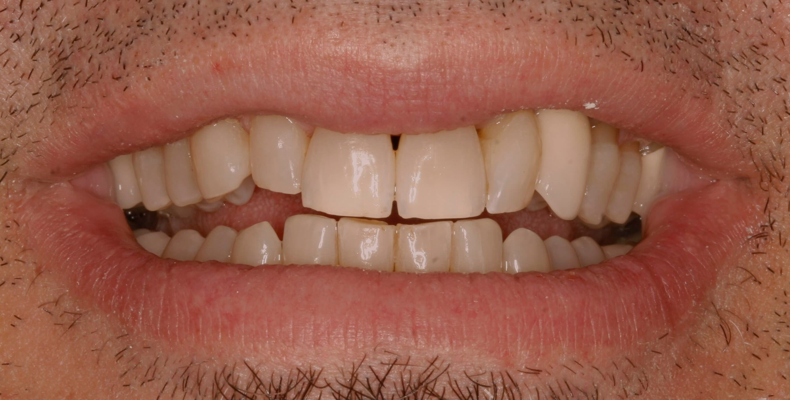 Smile Makeover with Veneers Before