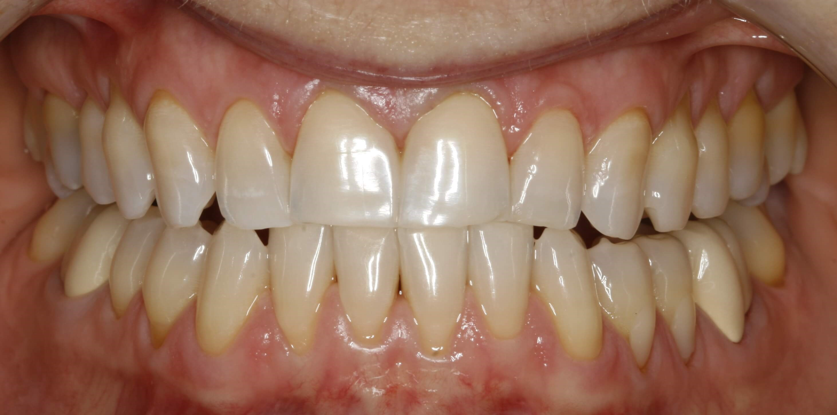Porcelain Crown Smile Design Before