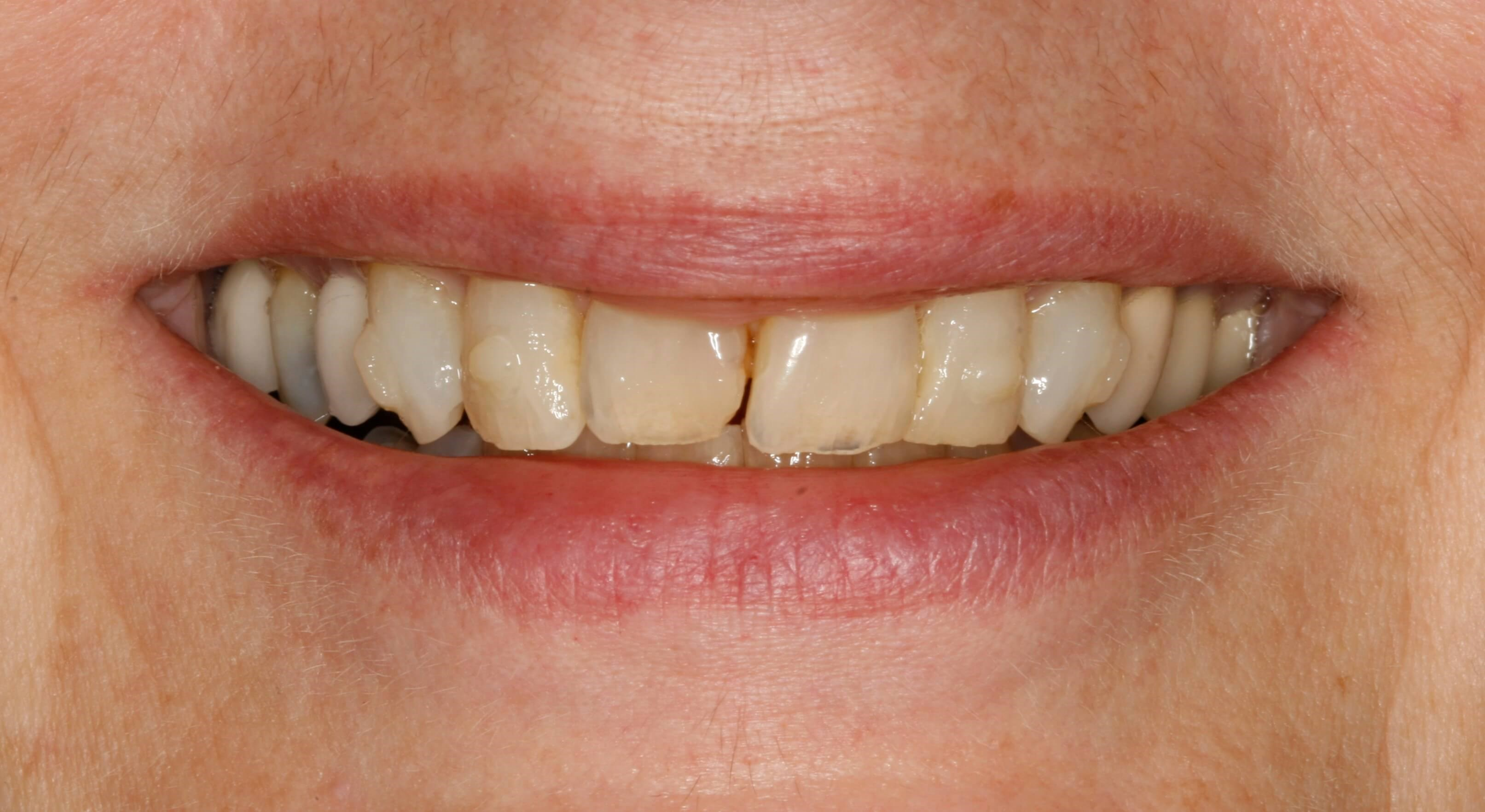Invisalign and Veneers Before