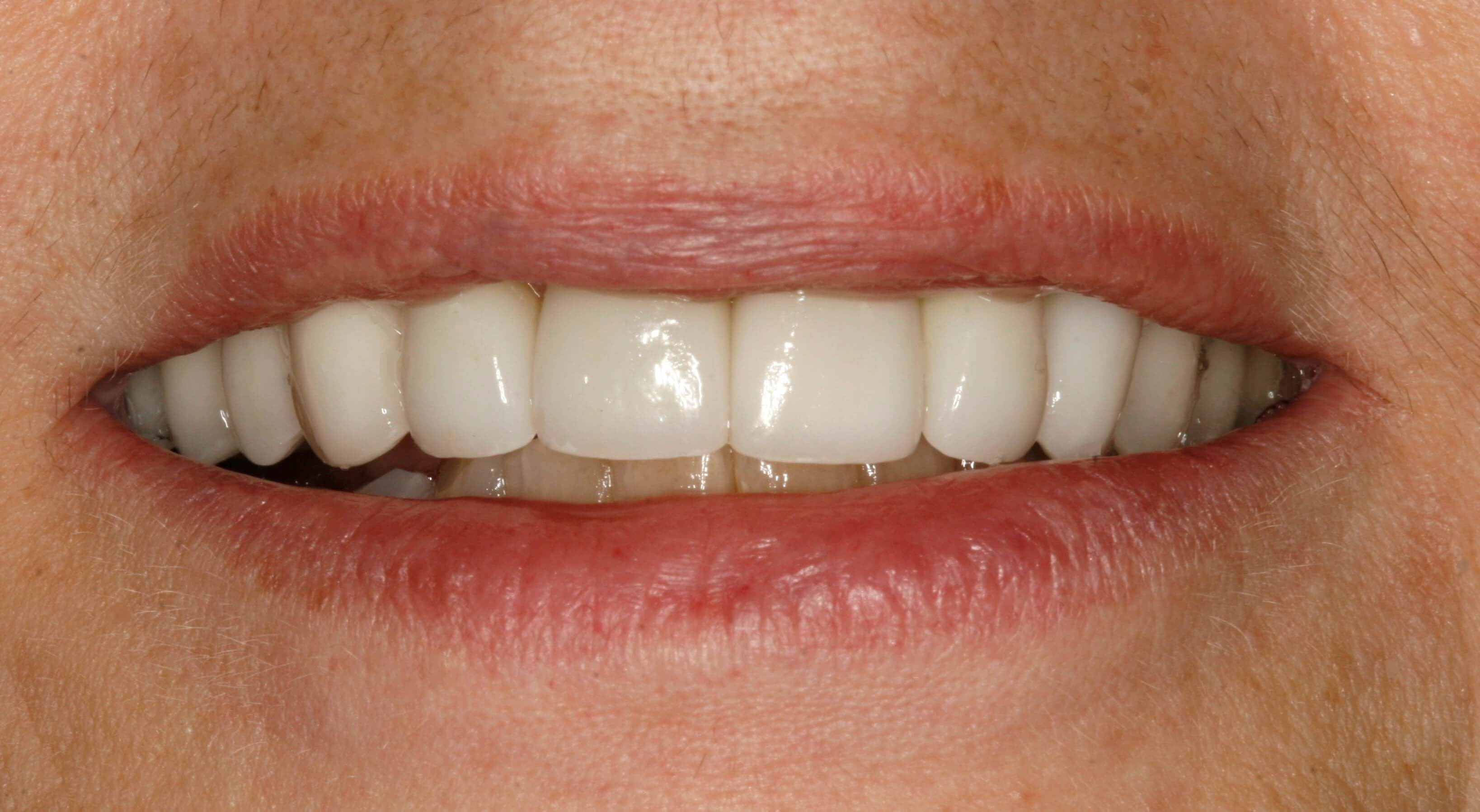 Invisalign and Veneers After