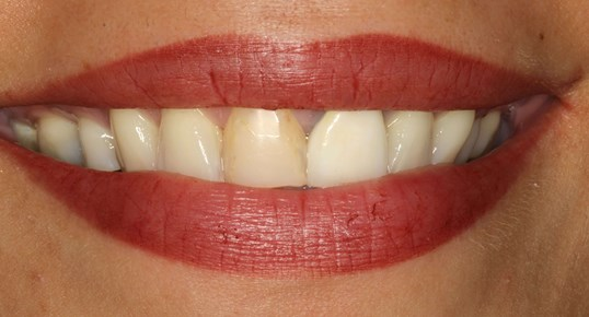 Implants and Porcelain Crowns Before