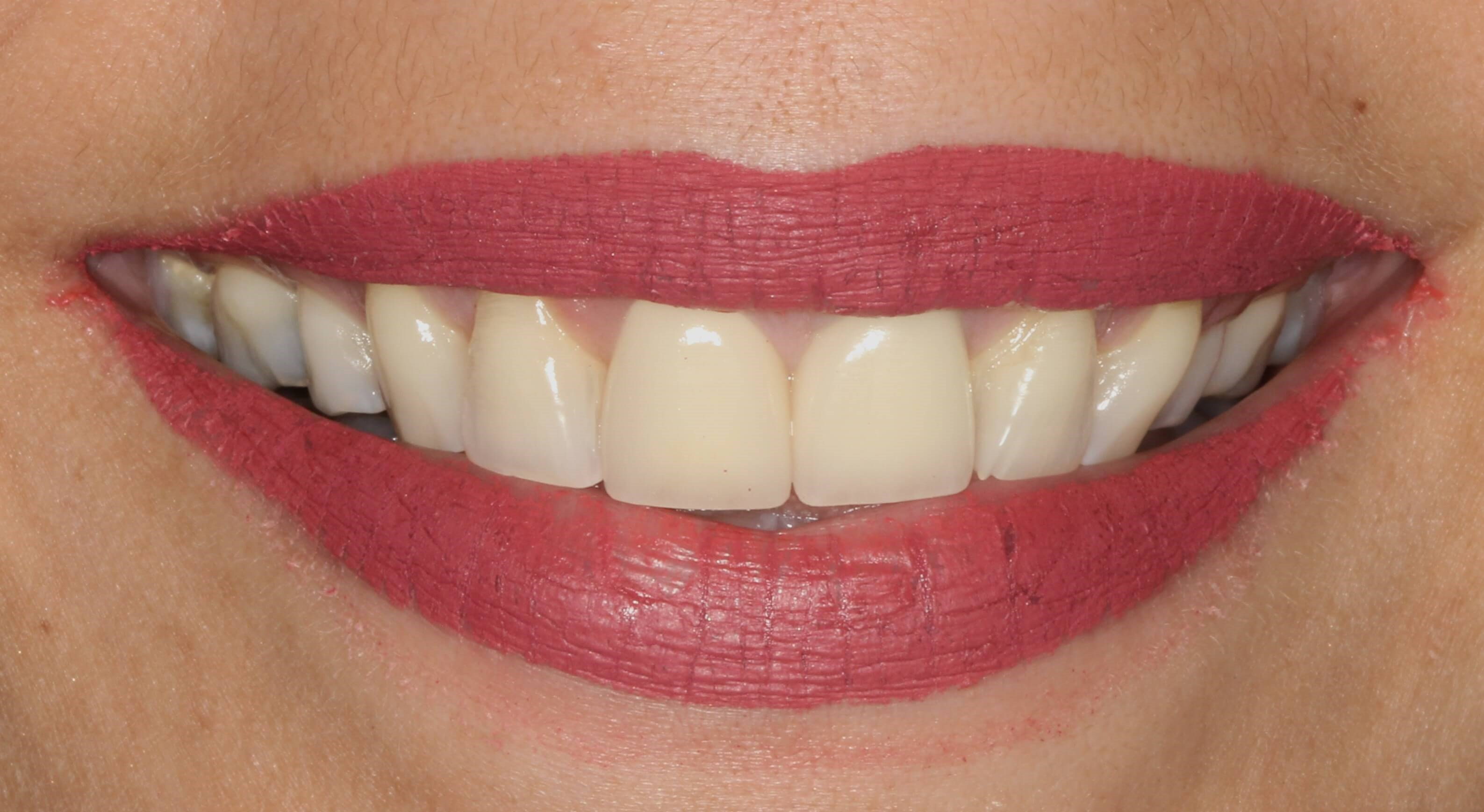 Implants and Porcelain Crowns After