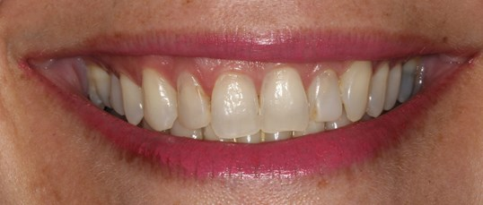 Youthful Smile Makeover Before
