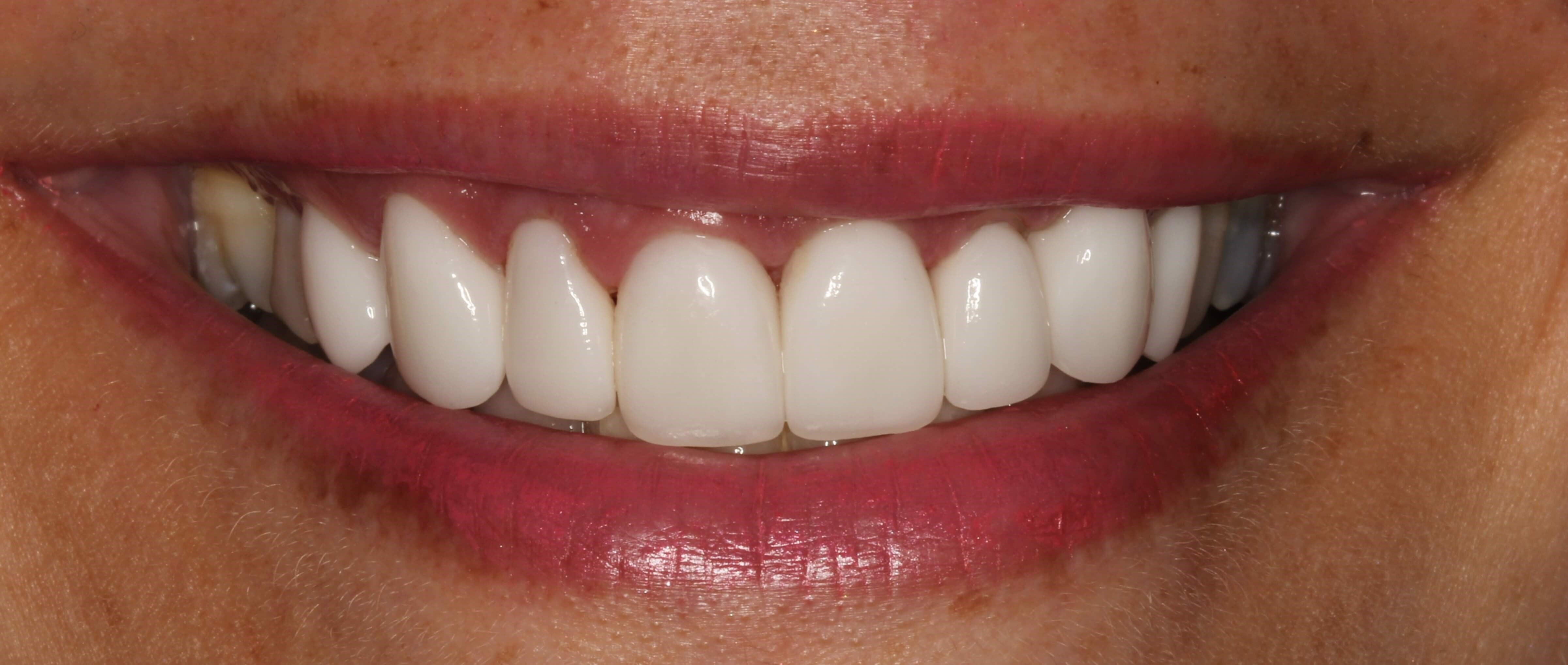 Youthful Smile Makeover After