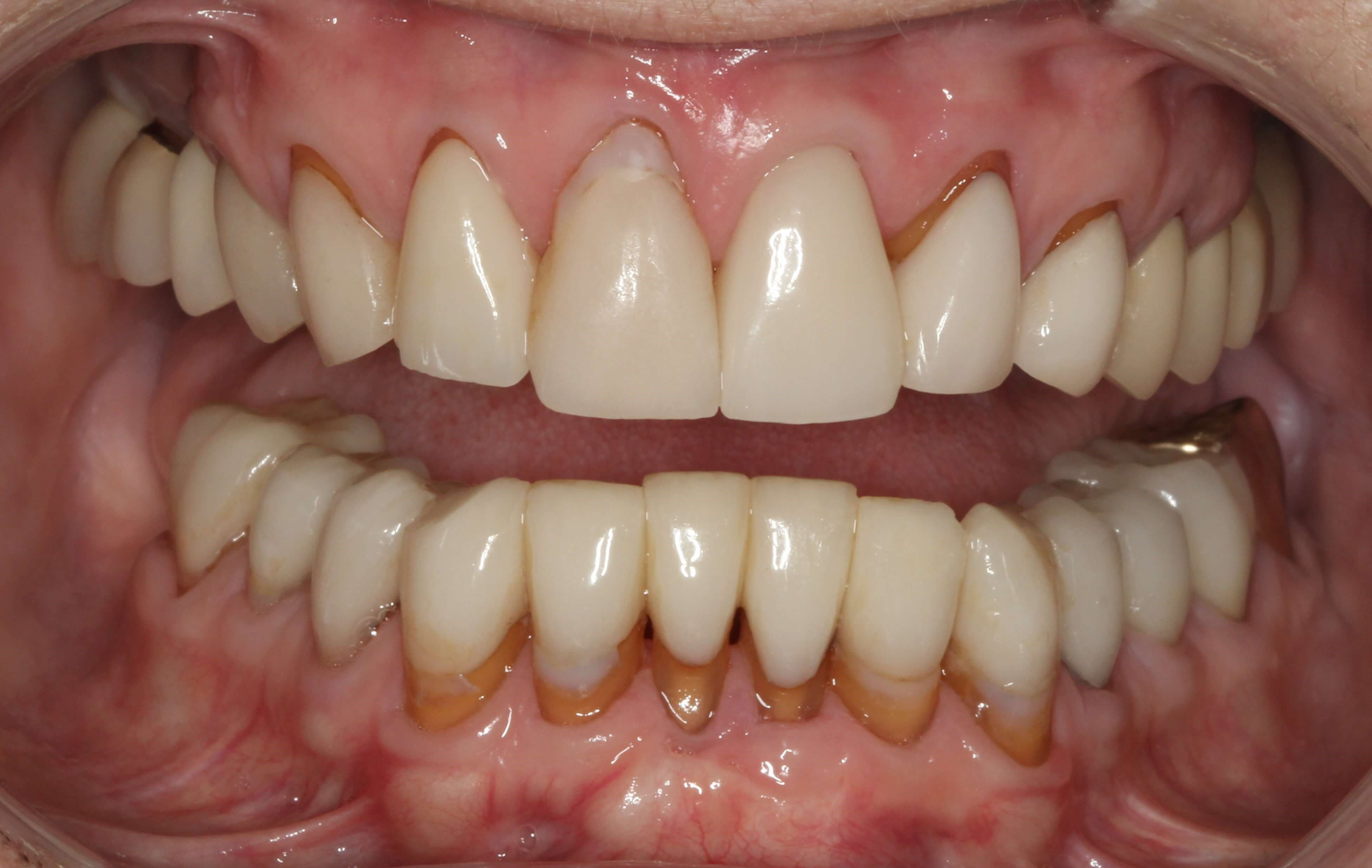 Full-Mouth Smile Makeover Before