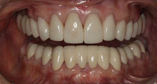 Full-Mouth Smile Makeover After