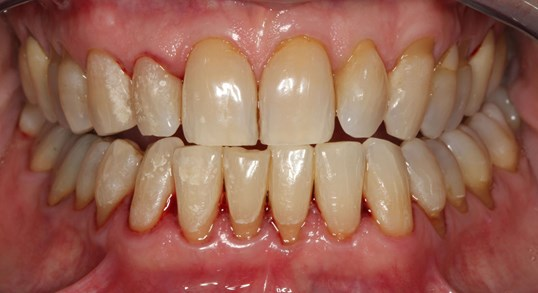 Porcelain Veneer Smile Design Before