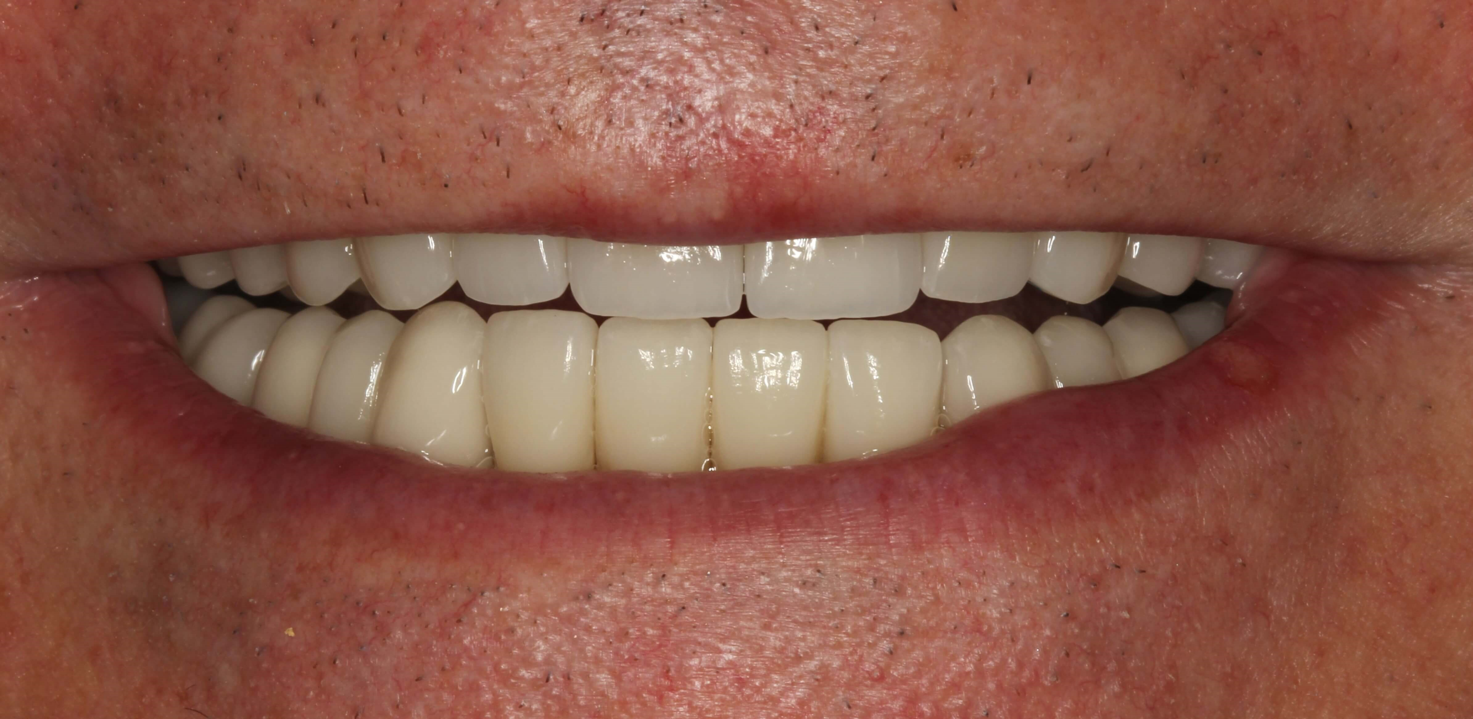 Full-Mouth Makeover After