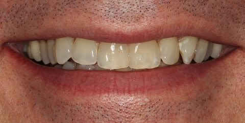 Porcelain Veneers at SmilesNY Before