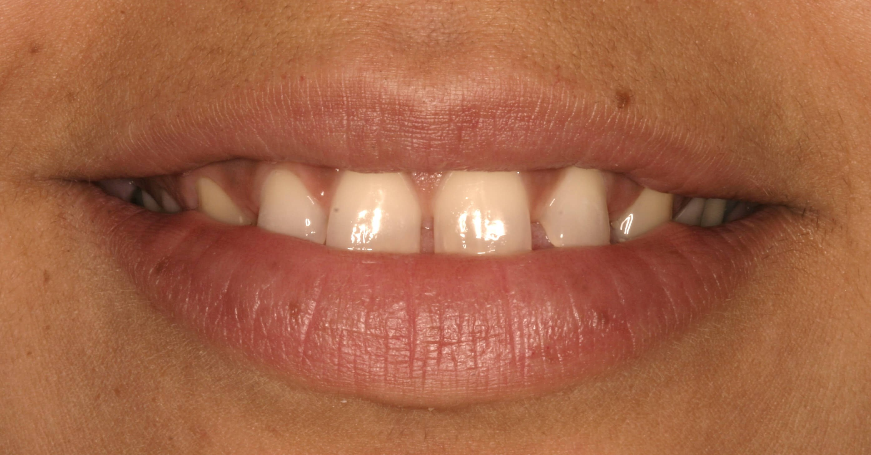Smile Makeover at SmilesNY Before
