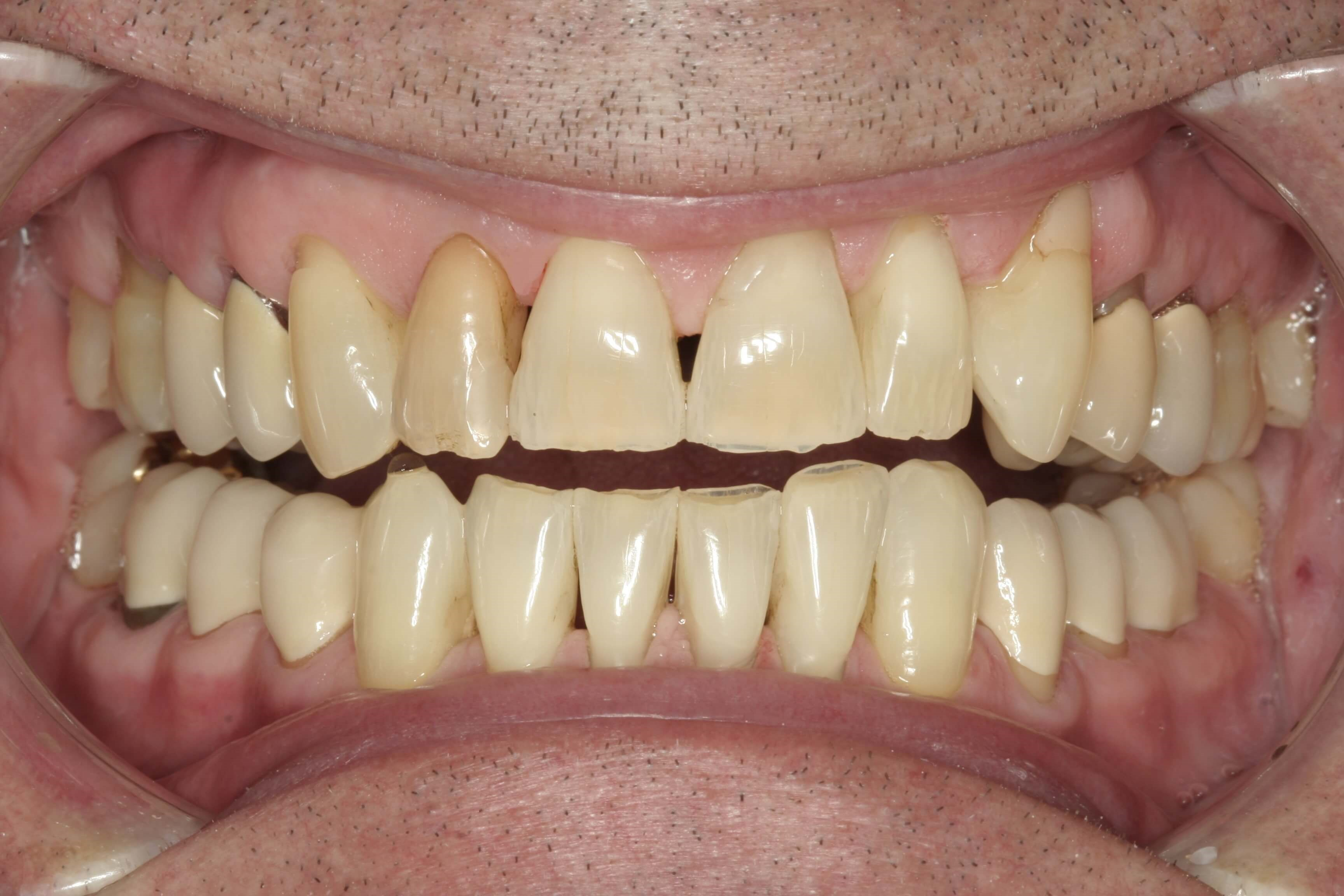 Smile Design for Worn Teeth Before