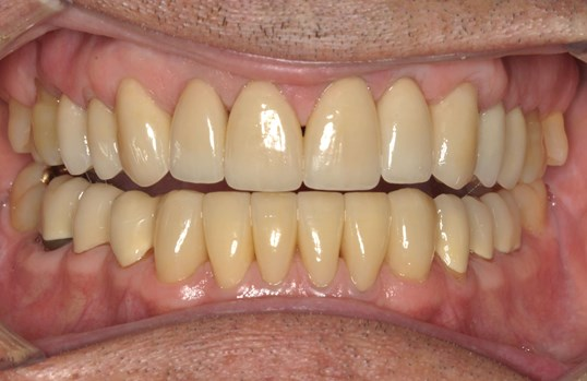 Smile Design for Worn Teeth After