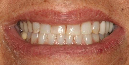 Porcelain Veneers and Crowns Before