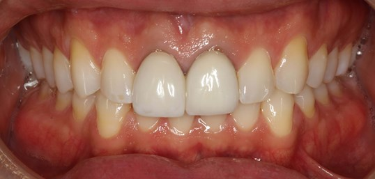 Veneer Replacement at SmilesNY Before