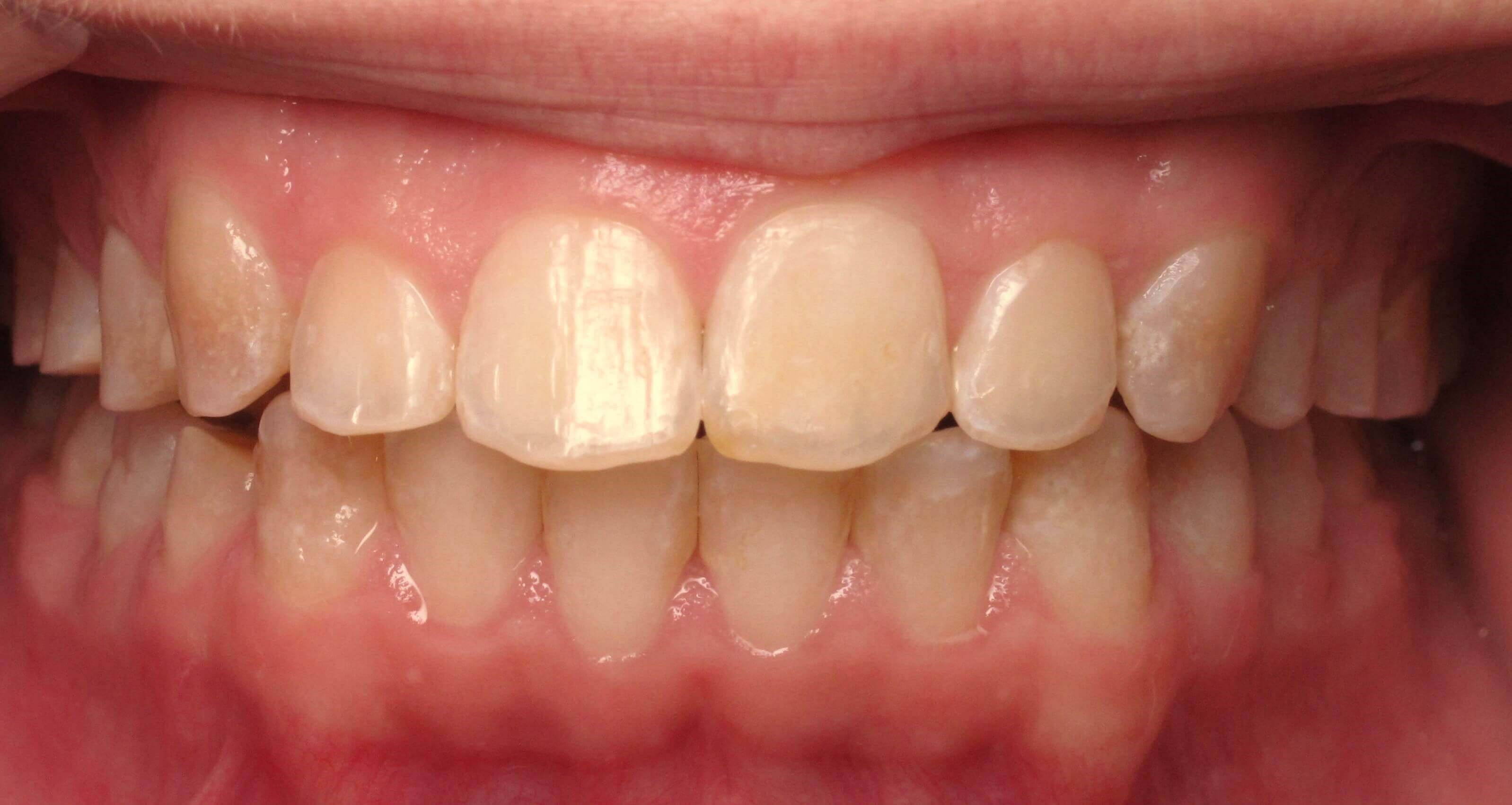 Veneers for Short Teeth Before
