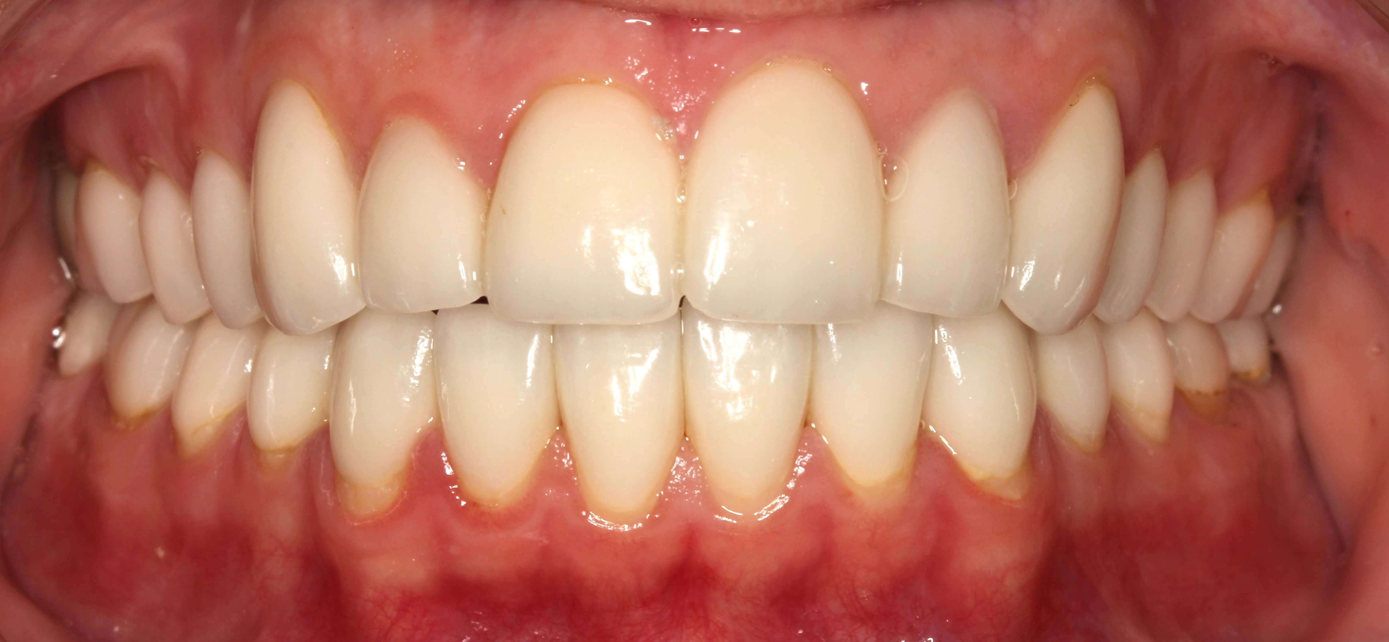 Veneers for Short Teeth After