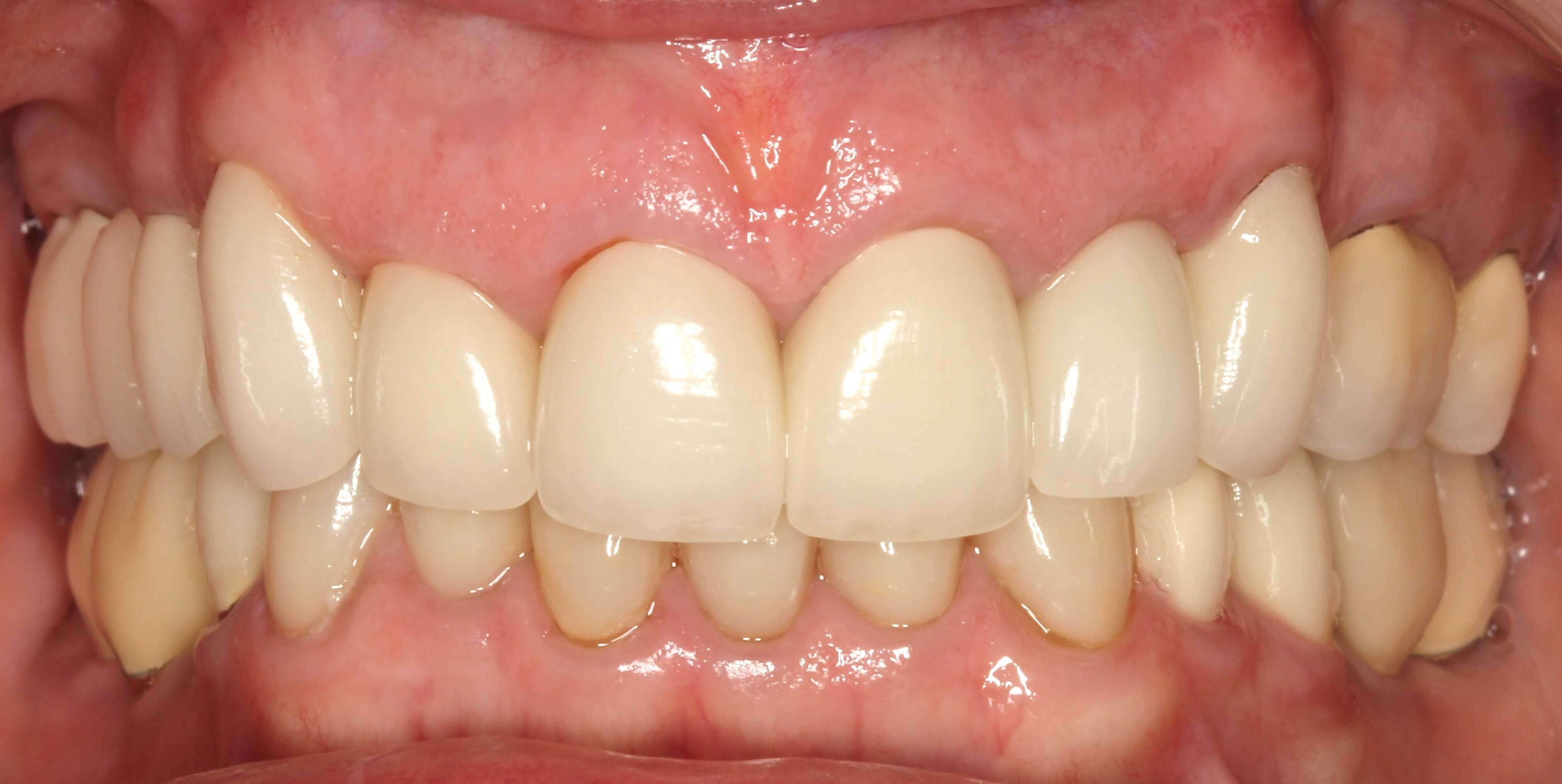 Porcelain Crown Smile Design After