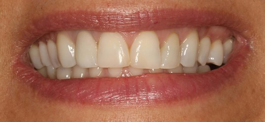 Smile Design at SmilesNY Before