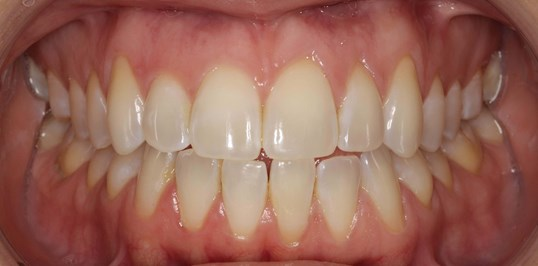 Invisalign Orthodontics Before