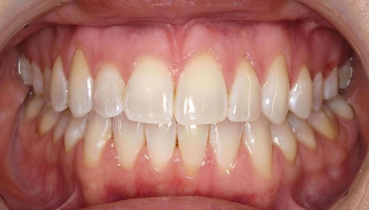 Invisalign Orthodontics After