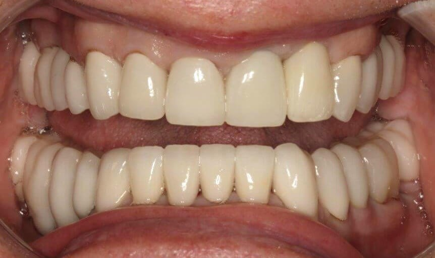Amazing Smile Makeover After