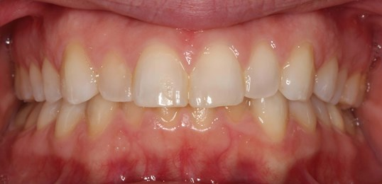 Veneer Smile Design Before