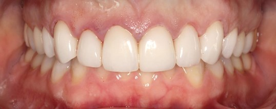 Veneer Smile Design After