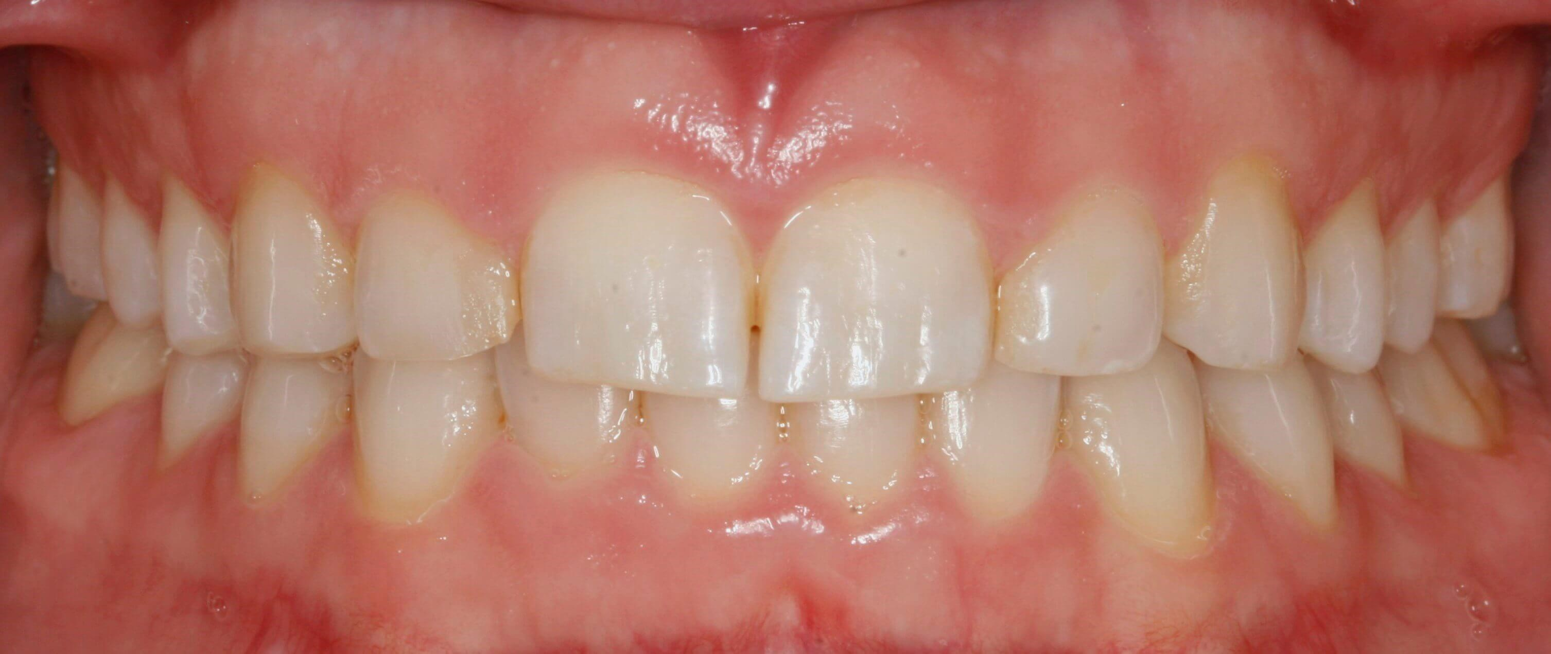 Crown Lengthening and Veneers Before