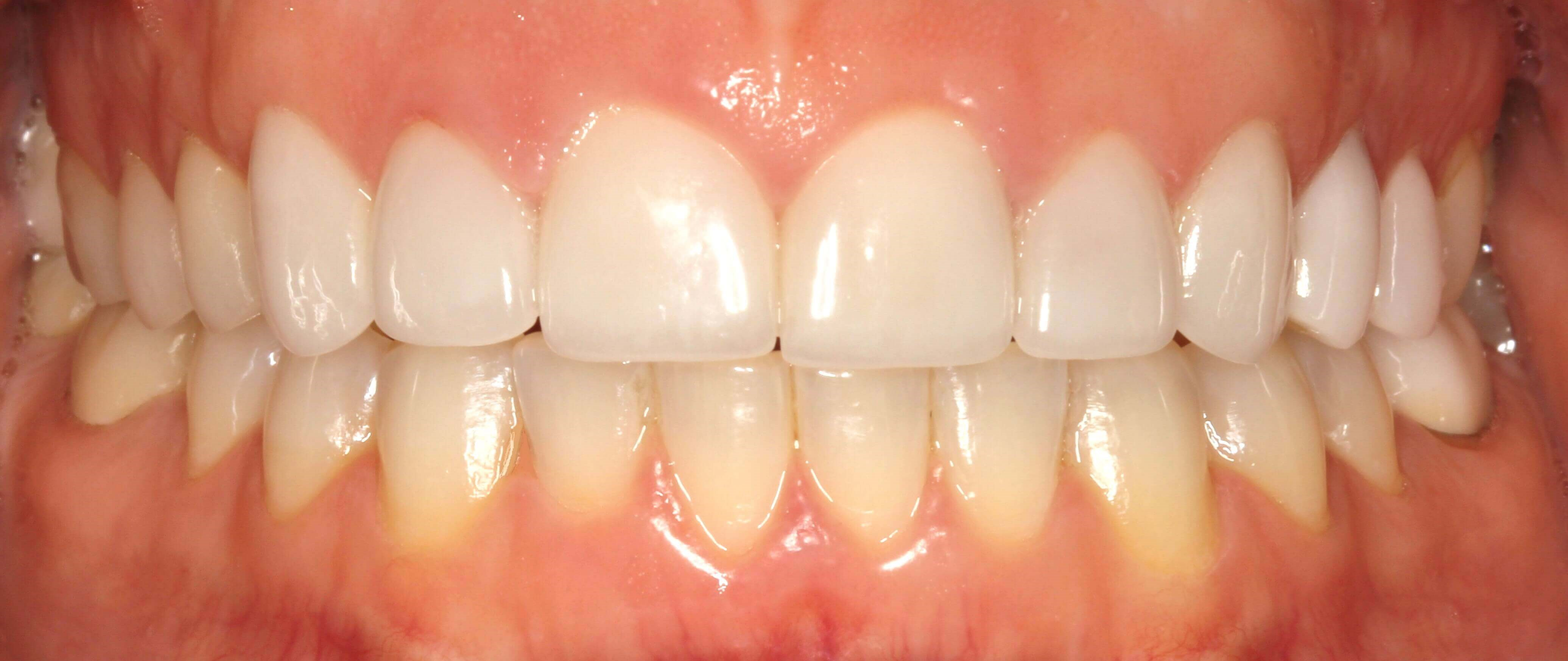 Crown Lengthening and Veneers After