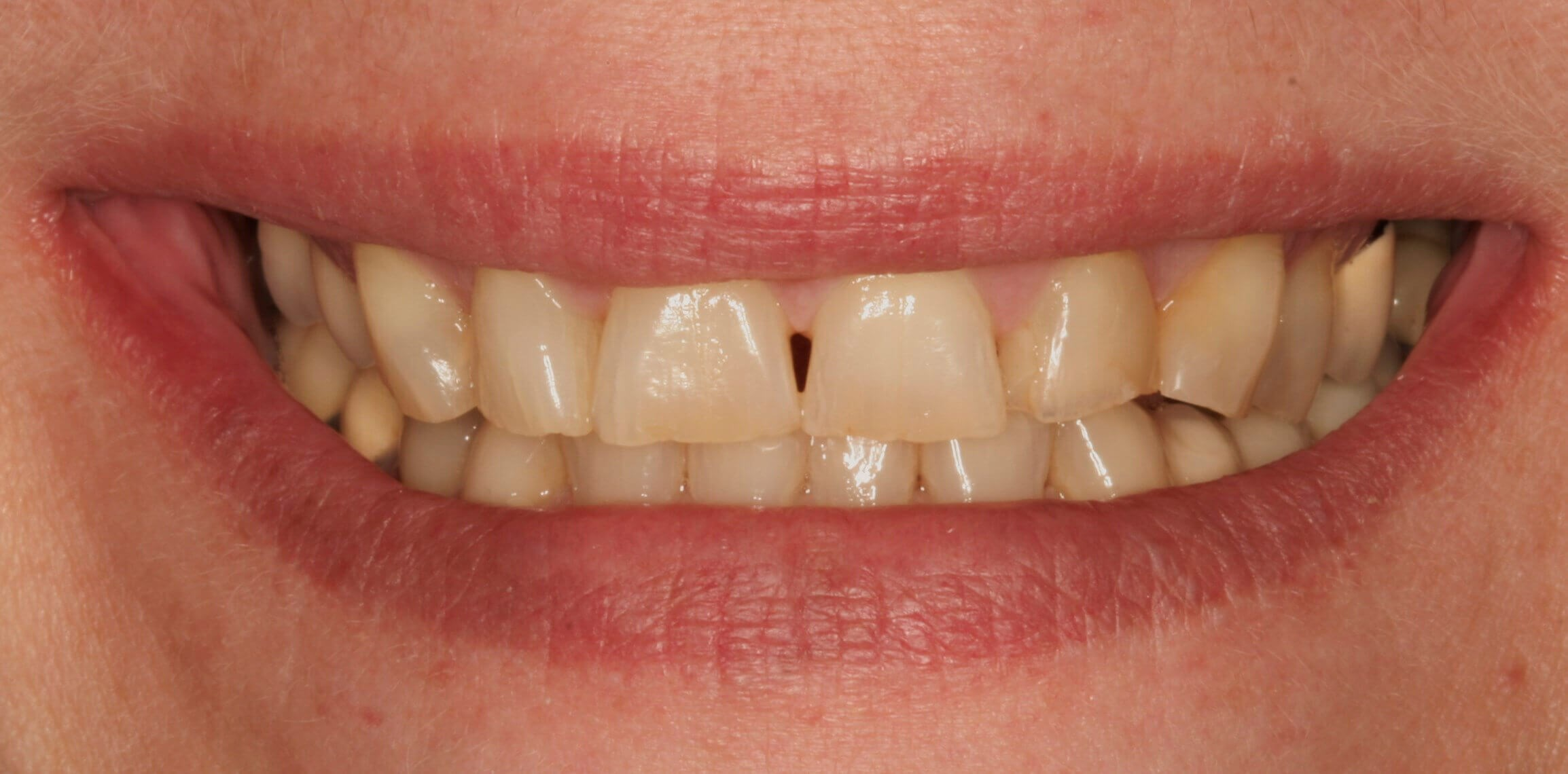 Full-Mouth Restoration Before
