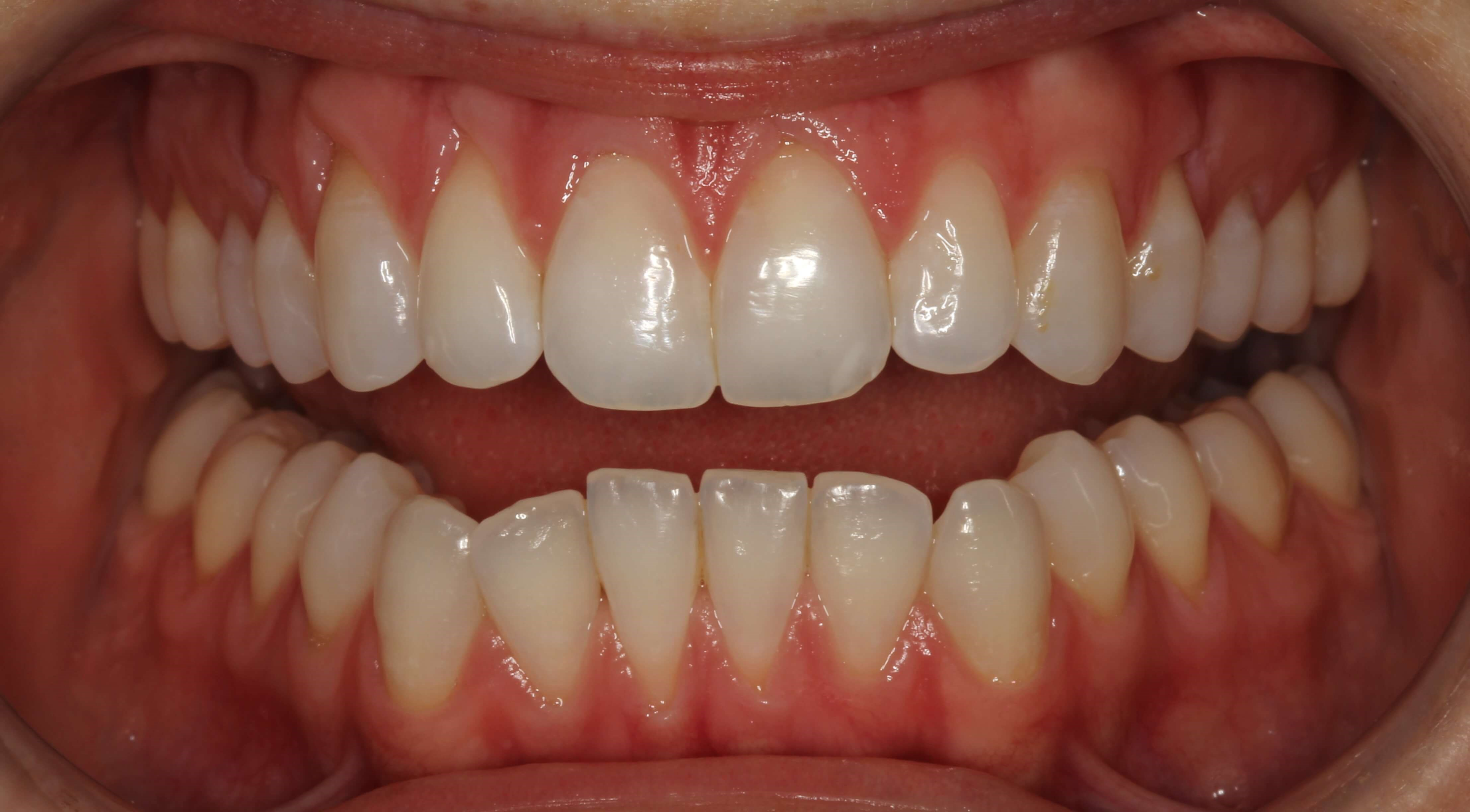 Invisalign Success Story Before