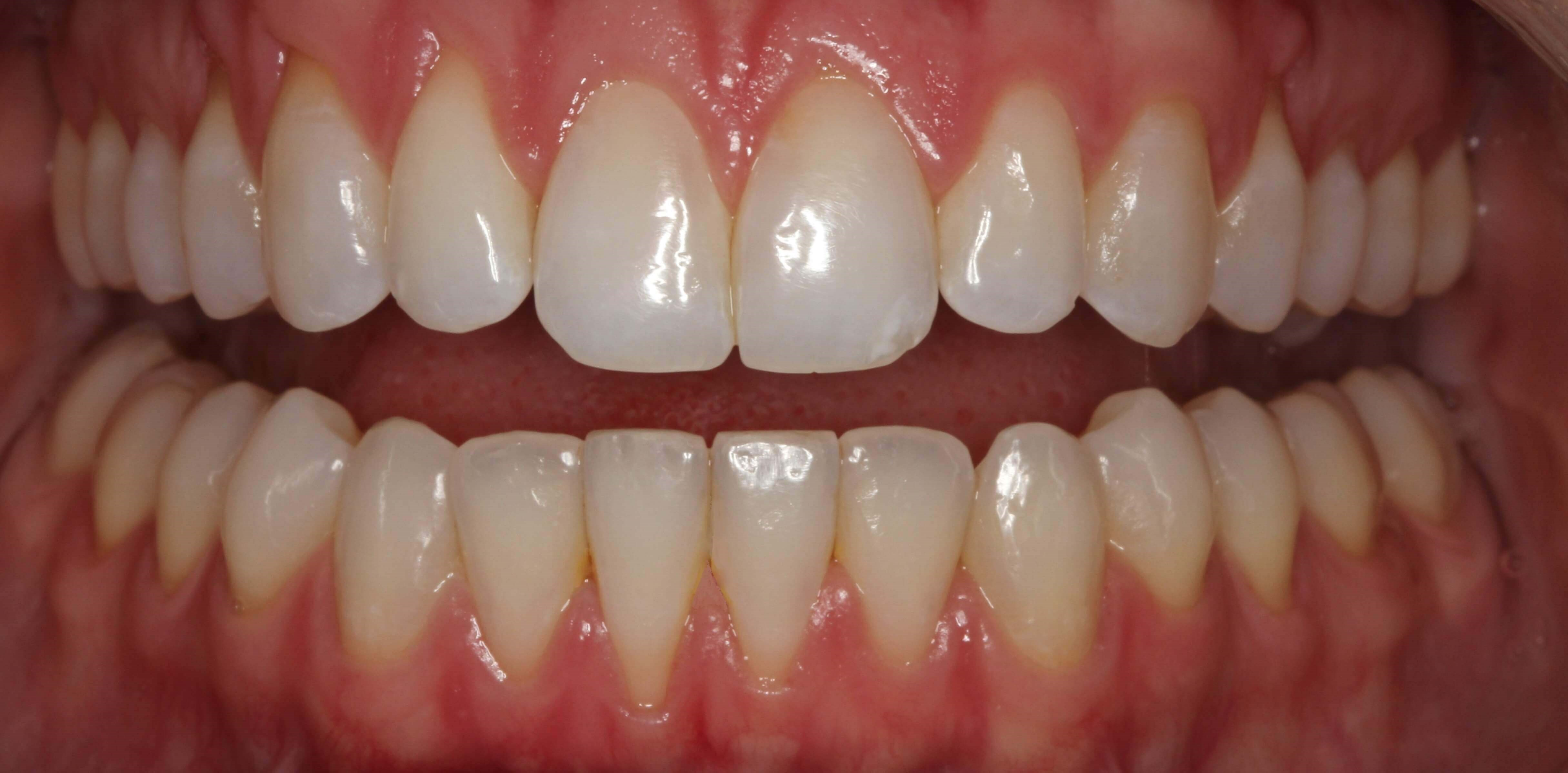 Invisalign Success Story After