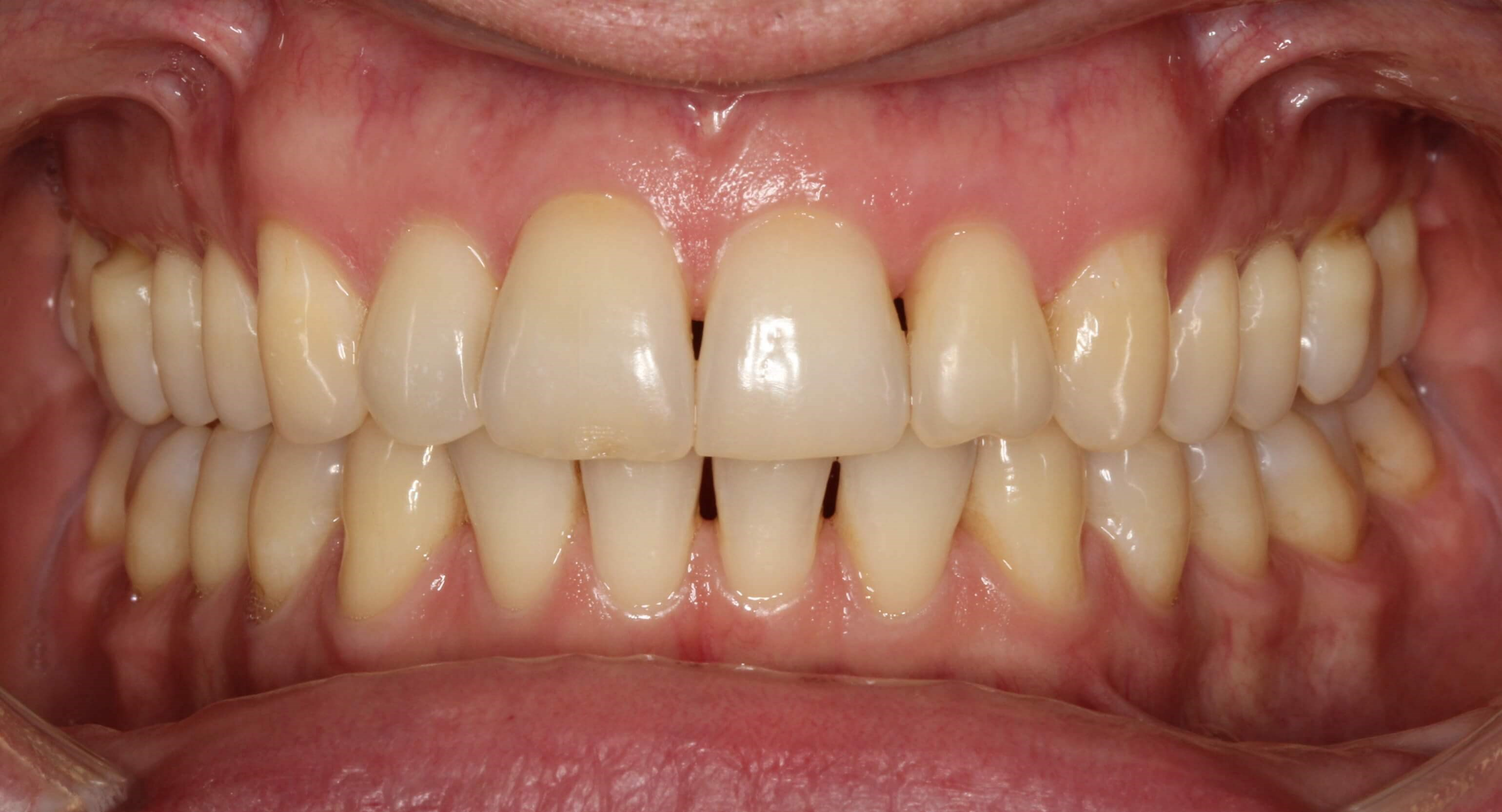 Invisalign Treatment in NYC After
